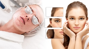 NOVO! Riješite se zauvijek ožiljaka od akni, hiperigmentacije ili kapilara! Revolucionarna metoda uklanjanja 3D Skin laserom u Bio+ klinik Salonu u Zagrebu uz 60% popusta…