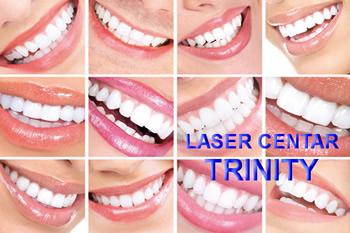 Izbeljivanje zuba kod zubara cena